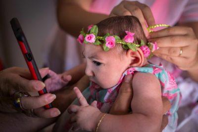 Otrok z mikrocefalijo (foto: epa).