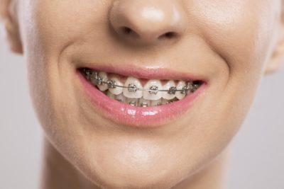 Nasveti iz ordinacije: To so koraki za zdrave in lepe zobe 2